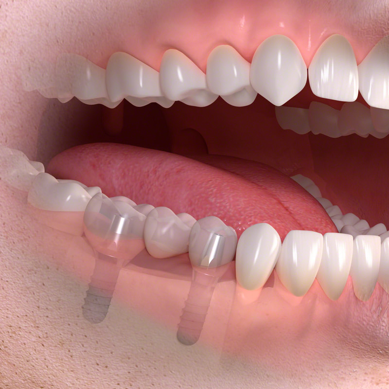 dental implants replaced teeth